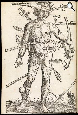 Paracelsus - Sebészetről szóló könyvének egyik illusztrációja, 1537 (Fotó: Wikipédia)